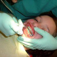 Duplicate Content Plaguing Orthodontist Websites